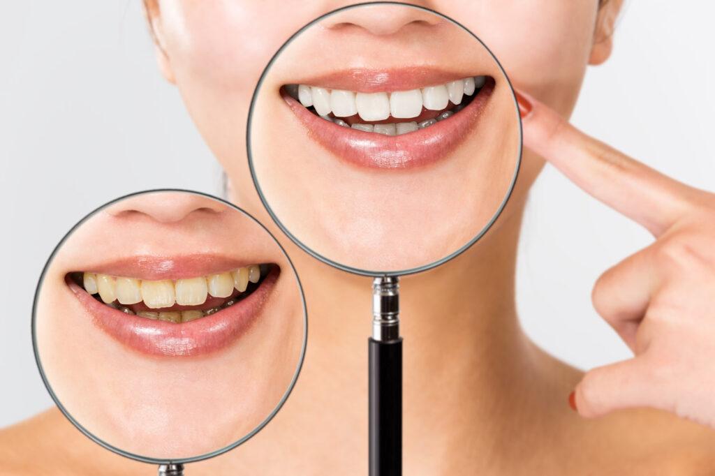 セルフホワイトニングで歯のヤニ取りはできる?ヤニの原因・対策・予防