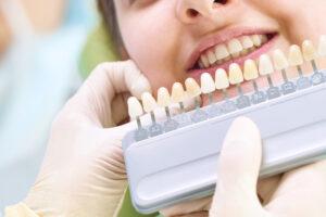 ホワイトニングでどれくらい白くなる?自然な白い歯に近づく方法