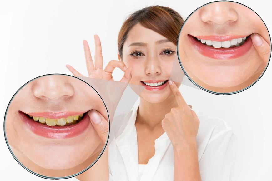 ホワイトニングした歯の色戻りの原因と対策について解説